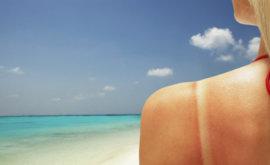 o-sunburn